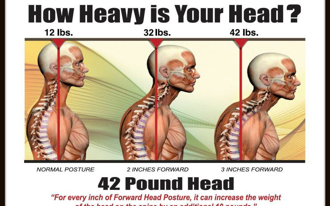Could poor posture be affecting your life?